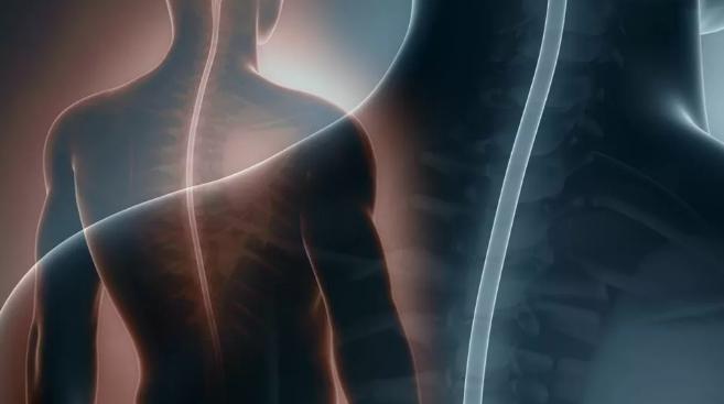 脊柱手术会影响灵性成长吗?